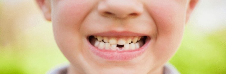 Ortopedia dentofacial, guía básica